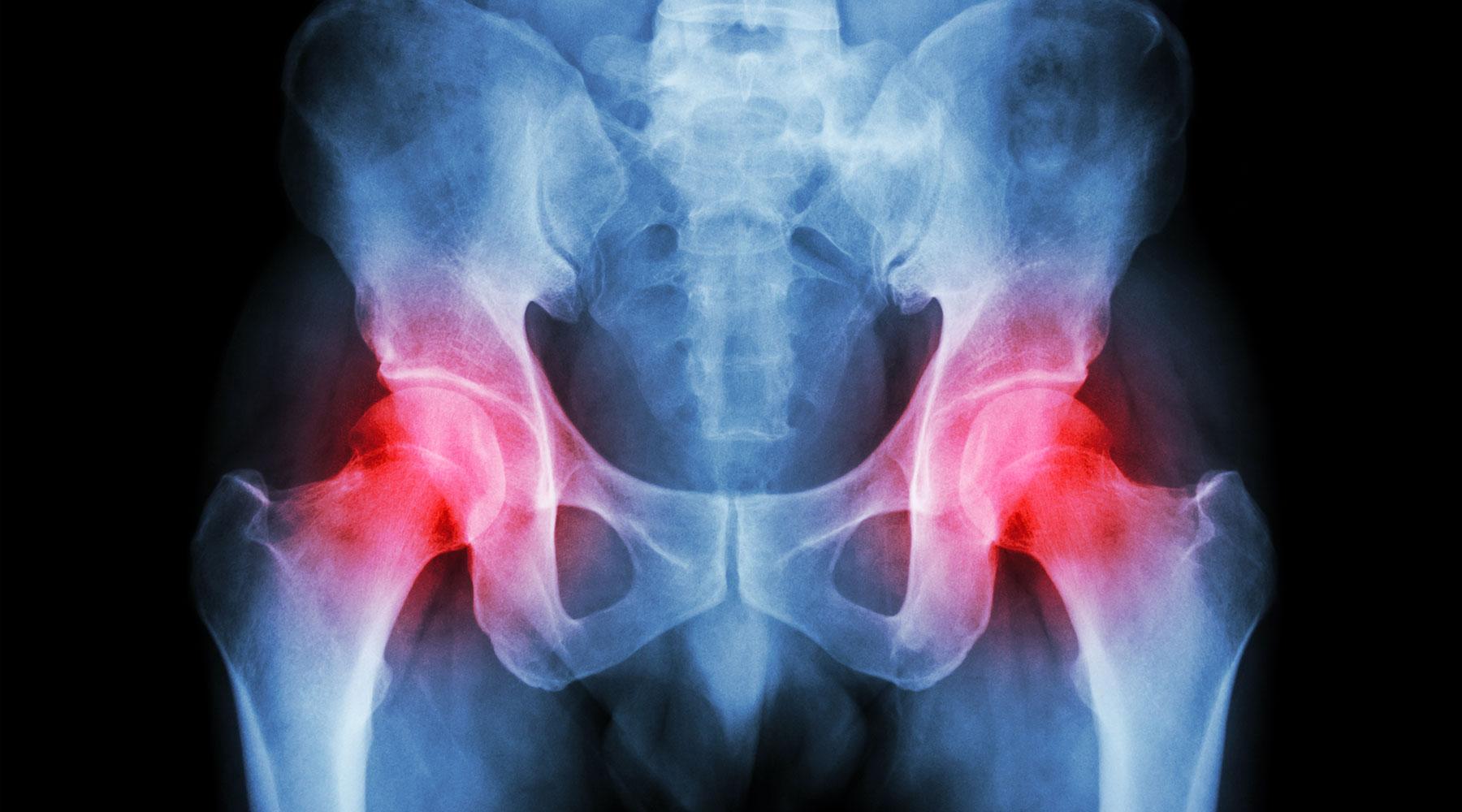 Webinar om moderne behandling af hofteartrose