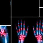 Artrose CAG ROAD om slidgigt